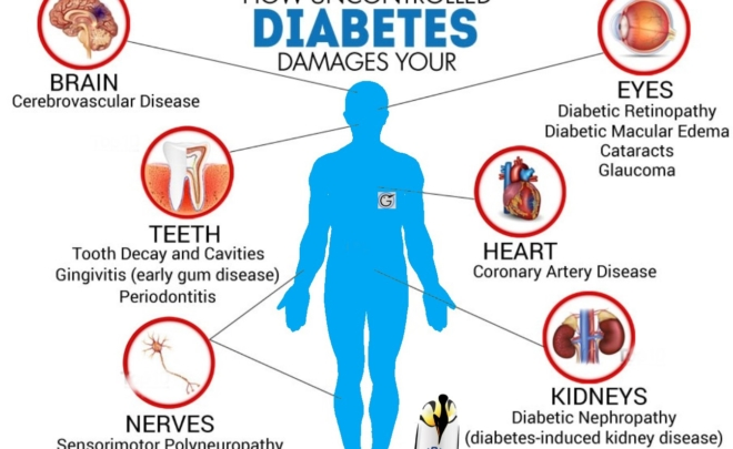 kuwait diabetes society san jose